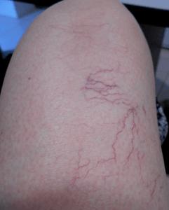 a leg showing spider veins