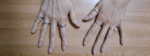 a picture of my hands showing nail growth