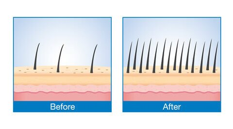 graphic displaying a zoomed in view of thin hair before and thicker after