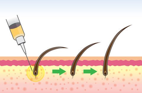 graphic displaying a hair follicle being injected by a needle